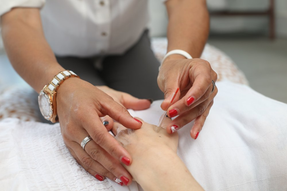 naturopathy-acupuncture